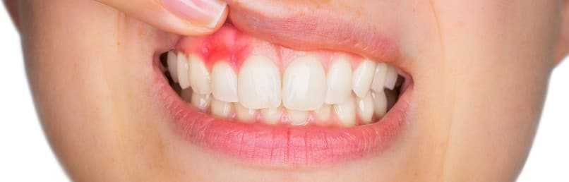 What Is Gingivitis and What Causes It